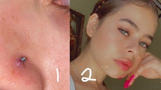 How to get rid of a nose piercing bump fast!! (Keloid)