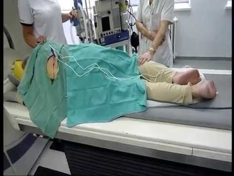 BPH chirurgie a komplikace