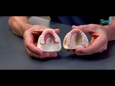 Wenn implant brust- dass beschädigt sein wird