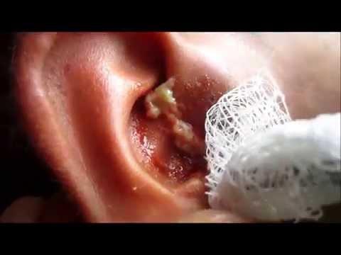 Dr. Vikram Yadav: Abscess Inside Ear!!!