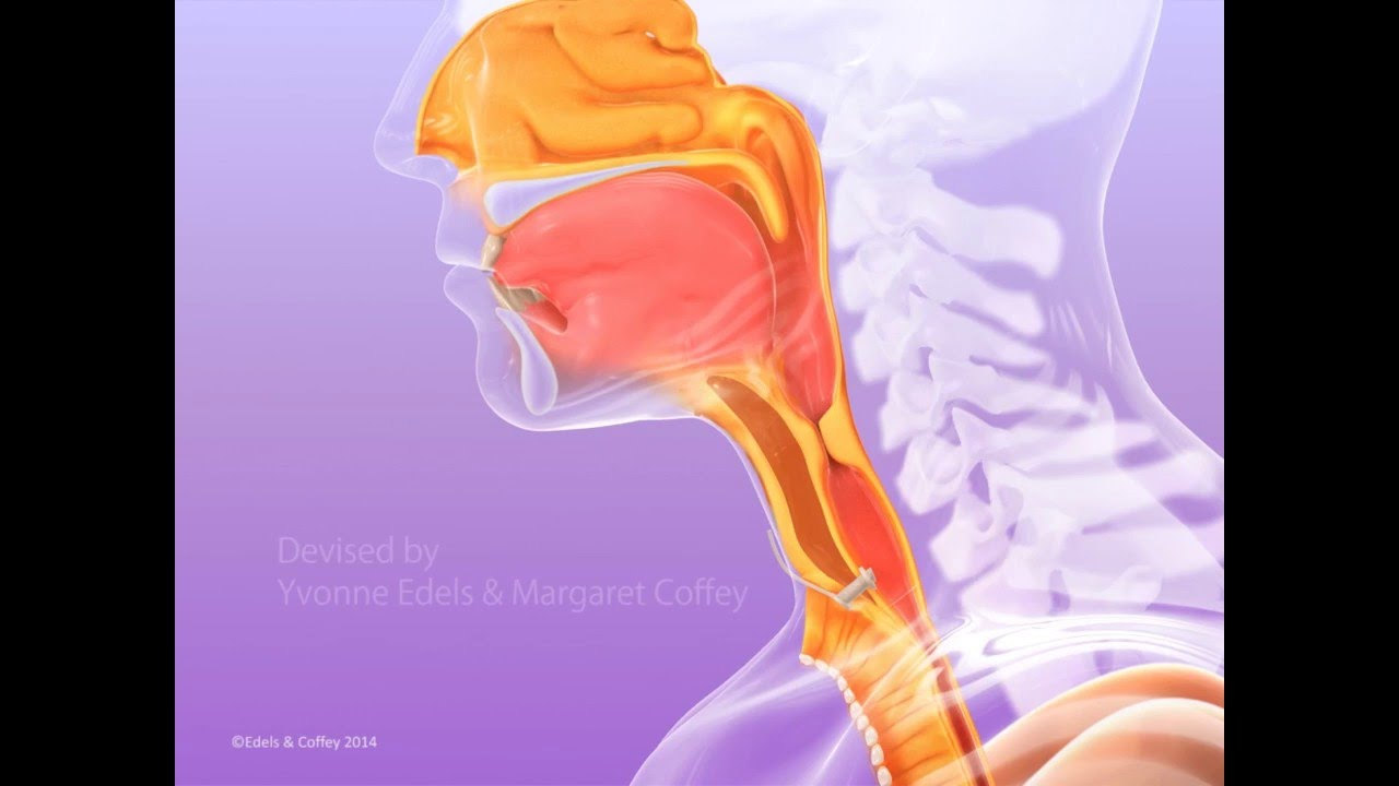 A unique Elearning module on Laryngectomy Surgical Voice Restoration for Head & Neck Cancer created by Yvonne Edels and Margaret Coffey with Imperial College, London and Imperial College Healthcare NHS Trust.