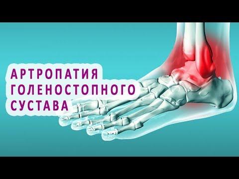 Что нужно знать об артропатии голеностопного сустава
