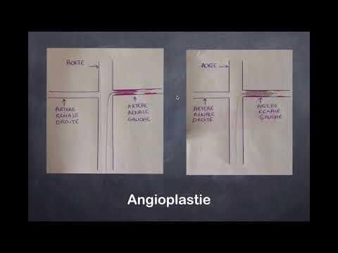 Les principes de diagnostic de la maladie hypertensive