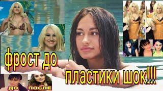 Шок!! Лера Фрост до пластики! Новости Дом 2 раньше эфира.