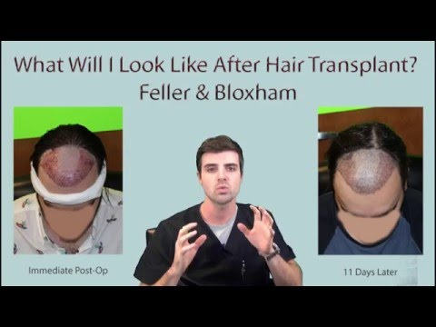 Nagkakalat ng androgenic alopecia