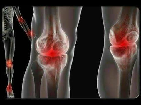 ยาสำหรับเส้นเลือดขอดที่ขา