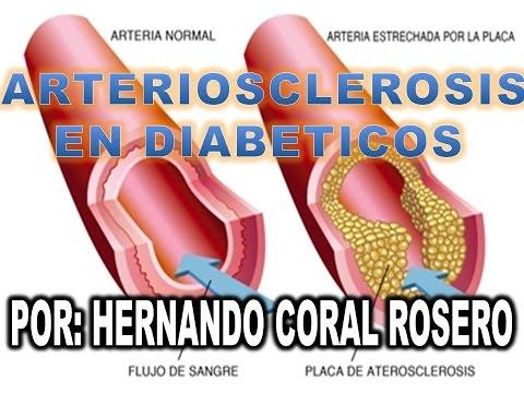 Los diabéticos tipo 1 discapacidades