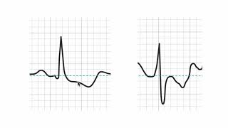 How to tell if a stress ECG (EKG) is positive?