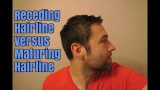 Receding Hairline Versus Maturing Hairline