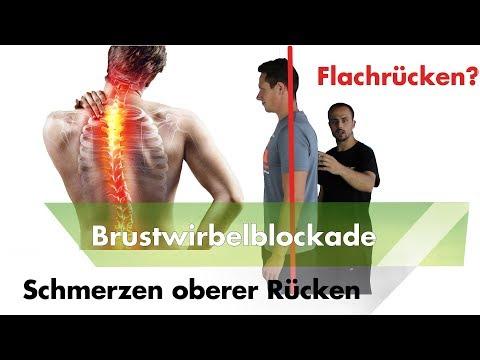 Brustwirbelsäule Neuralgie Ursachen
