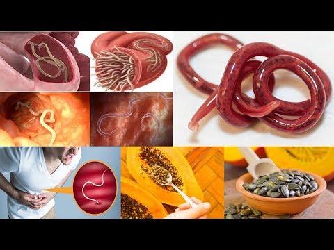 Tipul și tratamentul viermilor