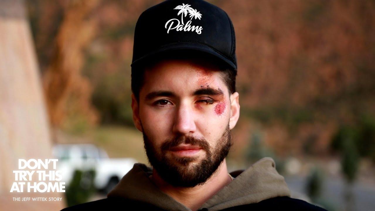 Un youtuber se rompe la cara
