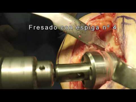 Hernia de disco intervertebral