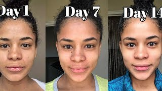 HOW TO GET RID OF ACNE DURING PREGNANCY NATURALLY( Real Results)( Vlogmentary)