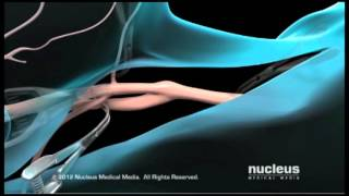 Cartoid Endarectomy