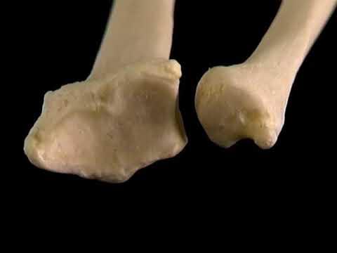 Enfermedad del tratamiento articulaciones y músculos