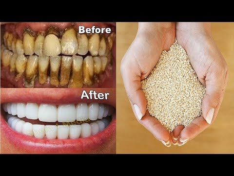 In 2 Minutes Turn Yellow Teeth to Pearl White - Teeth Whitening Home Remedy