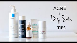 How To Treat Dry Skin + Acne
