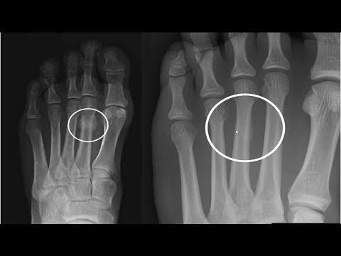 Durere în articulațiile degetelor și genunchilor