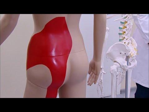Здоровье. Крестцово‑подвздошный синдром. Боль вспине, отдающая вногу.(11.09.2016)