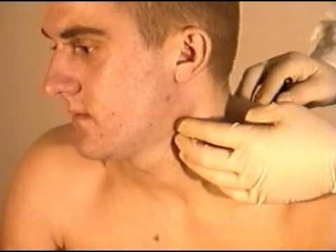 Лечение под лампой от желтухи