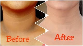 How To Get Rid of Dark Neck in 15 Minutes | Fast and Quickly