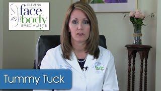Dr. Ortega | Drain vs Drainless tummy tuck.
