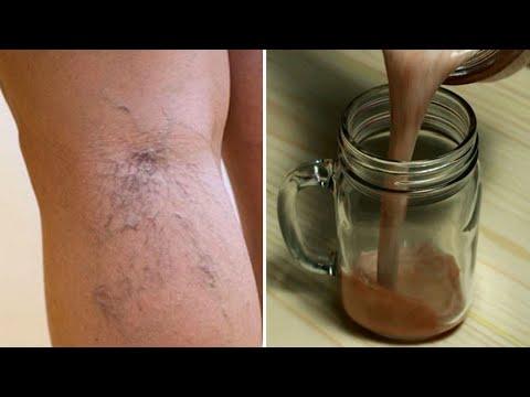 Crioterapie din vene varicoase