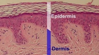 What Effect Does a Skin Peel Have & What Skin Layers Does It Remov... : Professional Skin Care Help