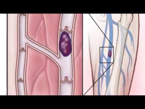 Malattie chirurgiche della cima e le estremità più basse