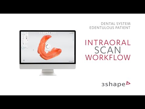 3Shape TRIOS Edentulous patient - Intraoral scan workflow