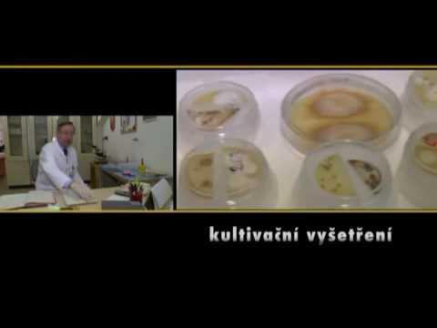 Cdl enterobioza