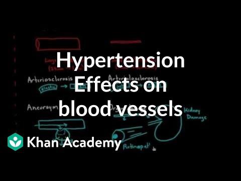 Bluthochdruck, Schmerzen in der Brust