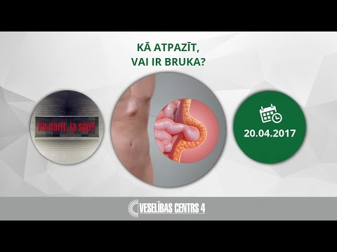 Prostatas ārstēšana Omsk