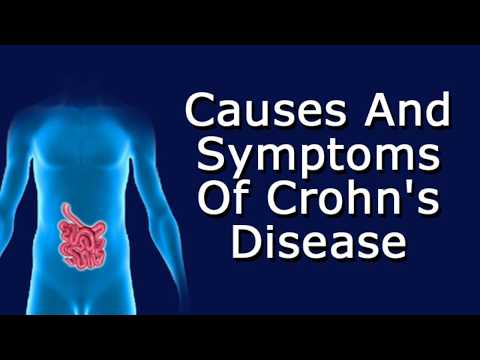 Video Causes and Symptoms Of Crohn's Disease