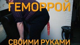 Своими Руками - ГЕМОРРОЙ