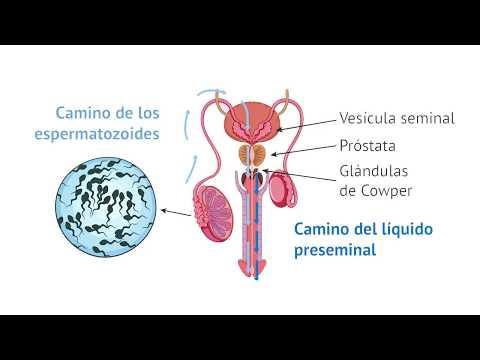Metástasis pulmonares en el cáncer de próstata