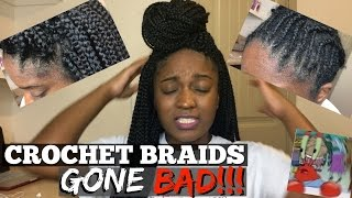 Crochet Braids Gone BAD!!! Infection? Allergic Reaction?