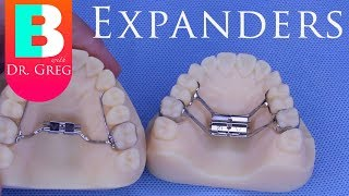 [BRACES EXPLAINED] Palatal Expanders