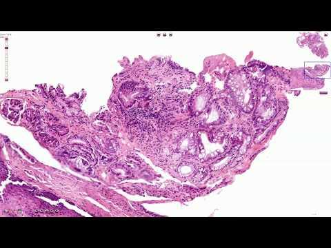 Boala tractului biliar giardia