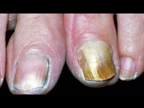 El propóleos sobre el alcohol del hongo de las uñas ayuda