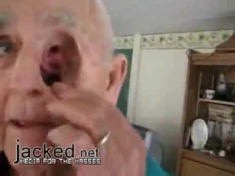 Kopfschmerzen bei Hypertonie Pathogenese