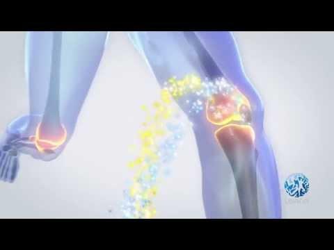 Cauza durerii de genunchi la ghemuit