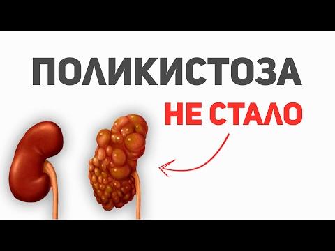 Didinti arterijų spaudimas sukelia