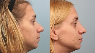 Female Rhinoplasty by Dr. Edwin Williams