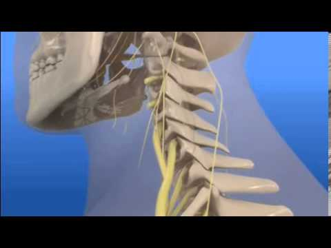 AUTO INJURY What Is Whiplash