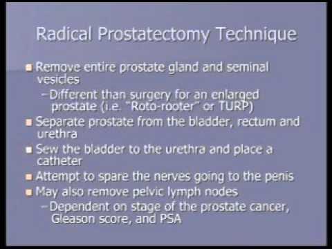 Zeitbehandlung der chronischen Prostatitis