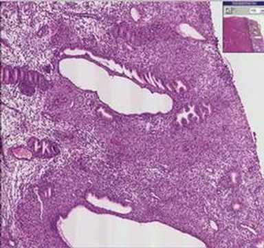 Humán papillomavírus vizeletminta