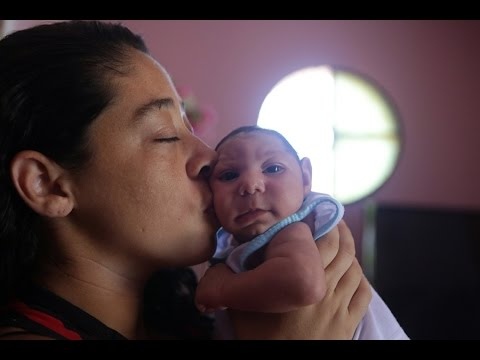 Video U.S. CDC concludes Zika causes microcephaly, other birth defects