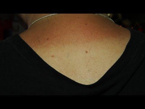 Pele sob o sol da serra também merece atenção e cuidado para evitar câncer